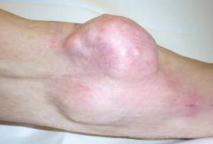 Саркома кости колена