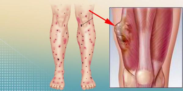 Злокачественная саркома на ногах