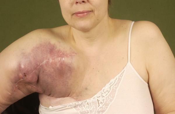 Проявление саркомы плеча