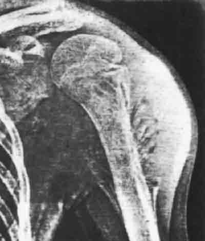 Рентген снимок саркомы плеча