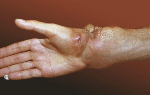 Саркома в месте перелома руки