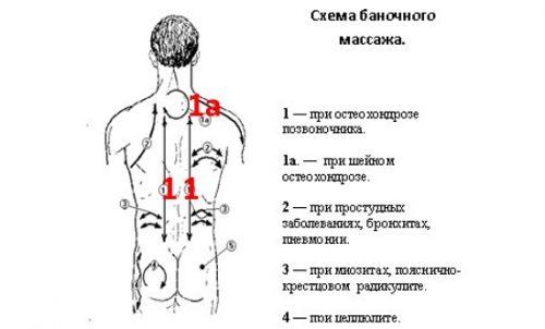 Схема баночного массажа