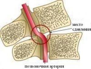 Сдавливание нервов при унковертебральном артрозе