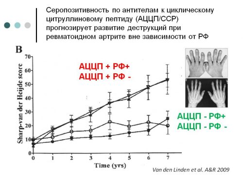 Серопозитивность ревматоидного артрита