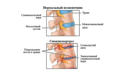 Шейный спондилоартроз
