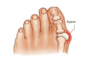 Схема бурсита большого пальца стопы