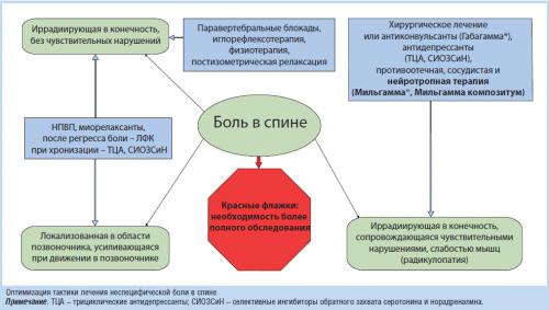 Схема лечения радикулопатии