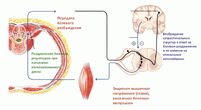 Схема мышечного спазма на фоне грыжи диска
