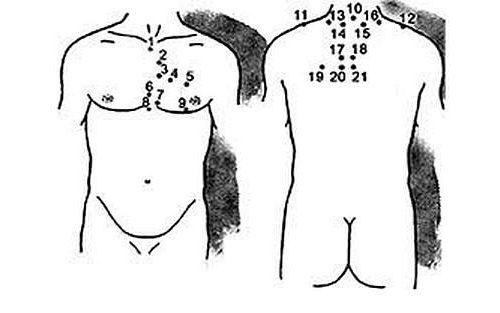 Схема постановки пиявок при шейном остеохондрозе