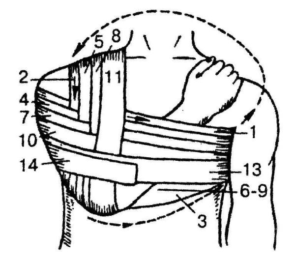 Схема повязки Вельпо