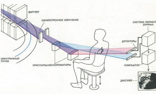 Схема рентген диагностики