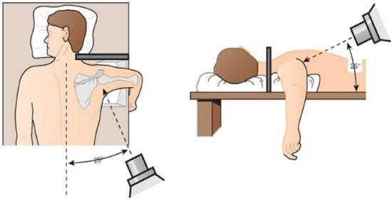 Схема угла рентгена плечевого сустава