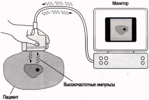 Схема действия ультразвуковой терапии
