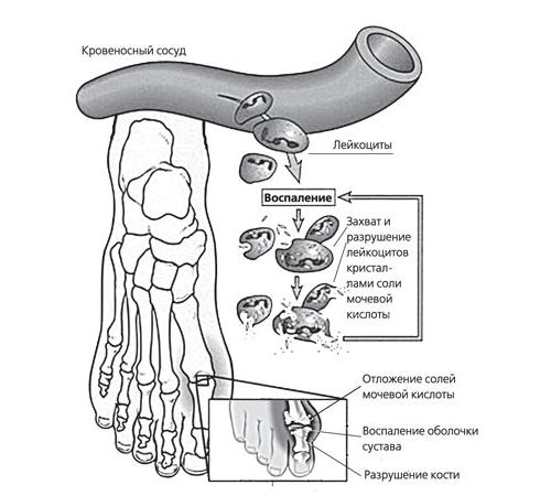 Схема возникновения подагрического артрита