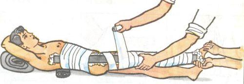 Шина для иммобилизации тазобедренного сустава