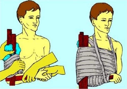 Шина при переломе локтевой кости