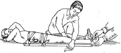 Шина при сильном разрыве связки колена