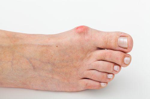 Появление шишки на ноге