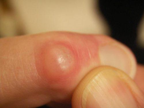 Образование шишки на пальце руке