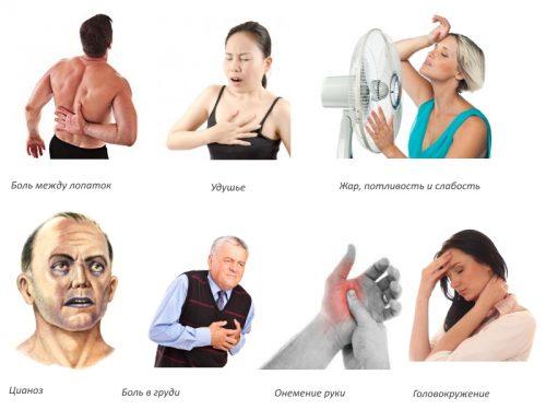 Симптомы аритмии при остеохондрозе