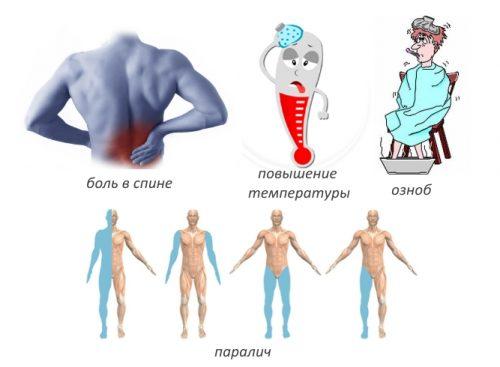 Симптомы эпидурального абсцесса