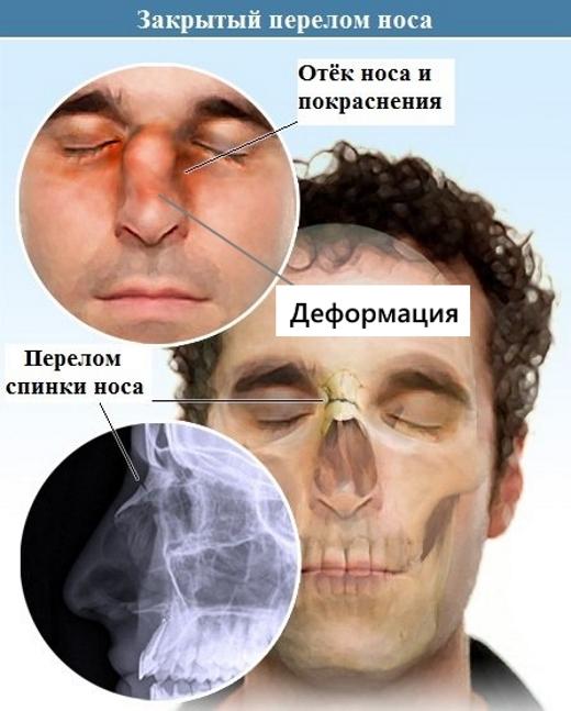 Симптомы закрытого перелома носа