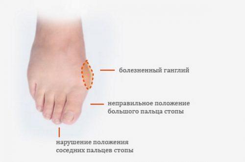 Симптомы вальгусной деформации стопы