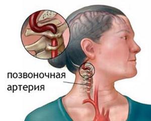 Синдром передавливания позвоночной артерии