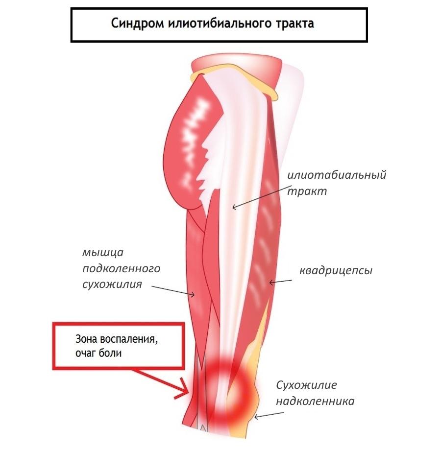Cиндром илиотабиального тракта (колено бегуна)