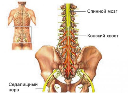 Невралгический синдром конского хвоста