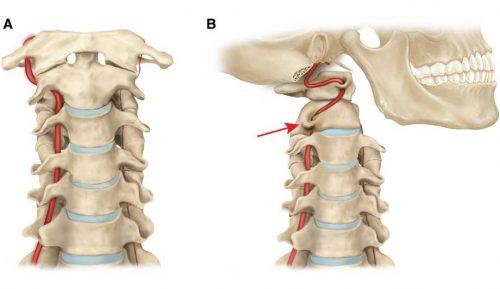 Возникновение синдрома позвоночной артерии при шейном остеохондрозе