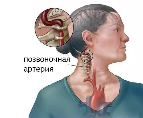 Пережимание позвоночной артерии