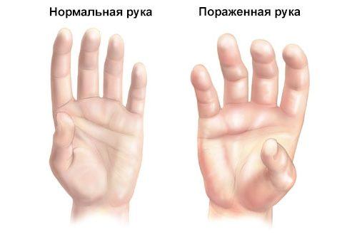 Проявление синдрома Зудека