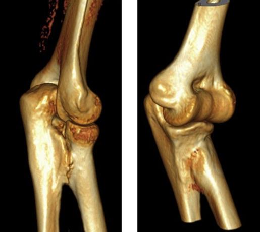 Синостоз костей предплечья