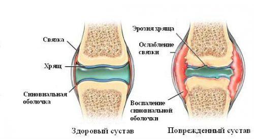 Воспаление синовиальной оболочки