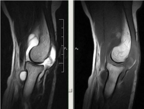 Синовит локтевого сустава на МРТ