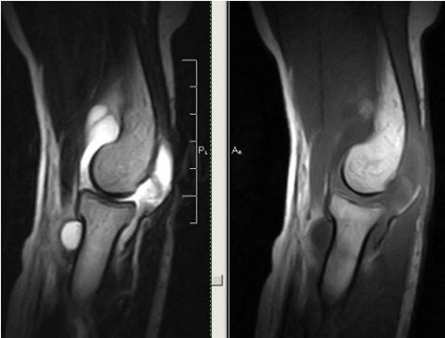 Cиновит локтевого сустава на МРТ