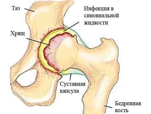 Расположение синовита тазобедренного сустава