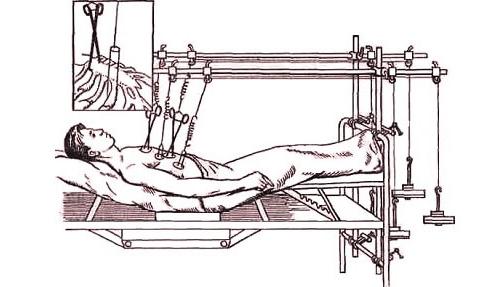 Скелетное вытяжение при переломе ребер