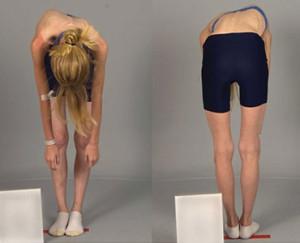 Сколиоз и неравномерная длина ног
