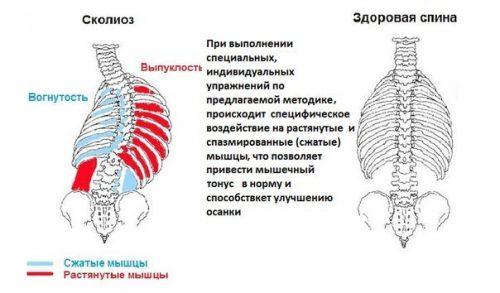 Сколиоз и мышечный дисбаланс