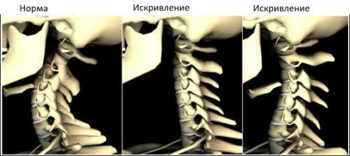 Сколиоз шеи