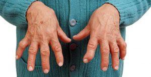 Скованность суставов при ревматоидном артрите