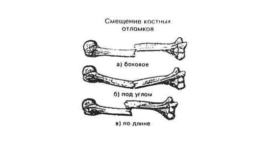 Смещение костных отломков