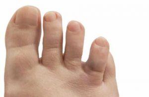 Смещение при переломе пальца стопы
