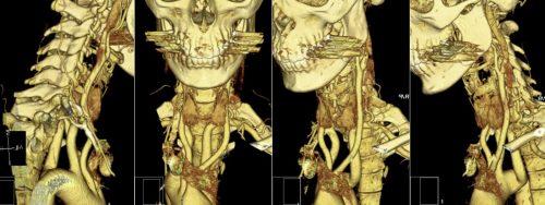 3Д–снимок КТ шейного отдела