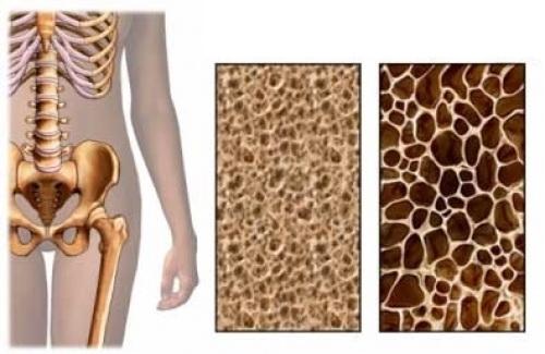 Снижение плотности костных тканей