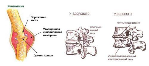 Сопровождающие факторы остеопойкилии