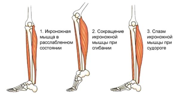 Спазм икроножной мышцы