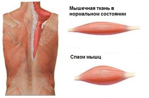 Возникновение мышечного спазма
